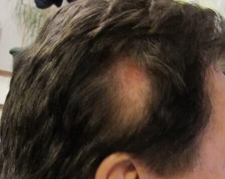 頭のケガ 2週間後 毛が生えてきた